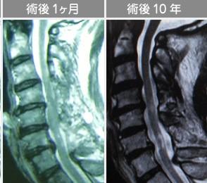 白石脊椎クリニック患者の頸部脊柱菅狭窄症画像
