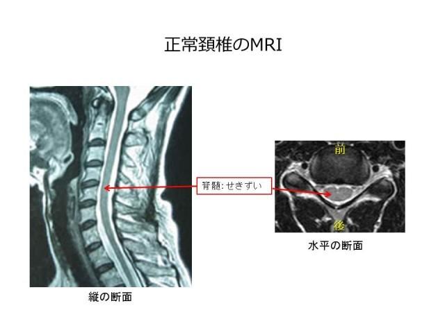 頚椎脊柱管狭窄症画像01