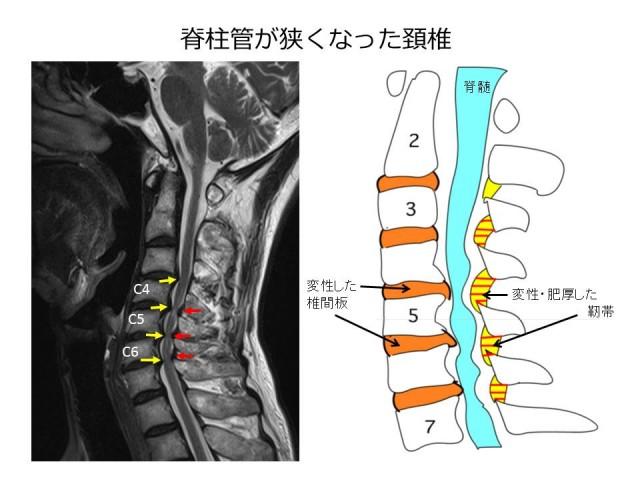 頚椎脊柱管狭窄症画像03