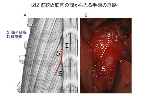 白石脊椎クリニック患者の頚椎症性神経根症画像03