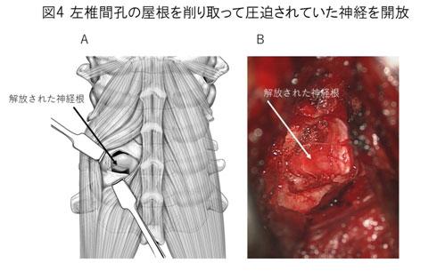 白石脊椎クリニック患者の頚椎症性神経根症画像05