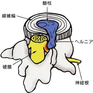 shiraishi-cl1