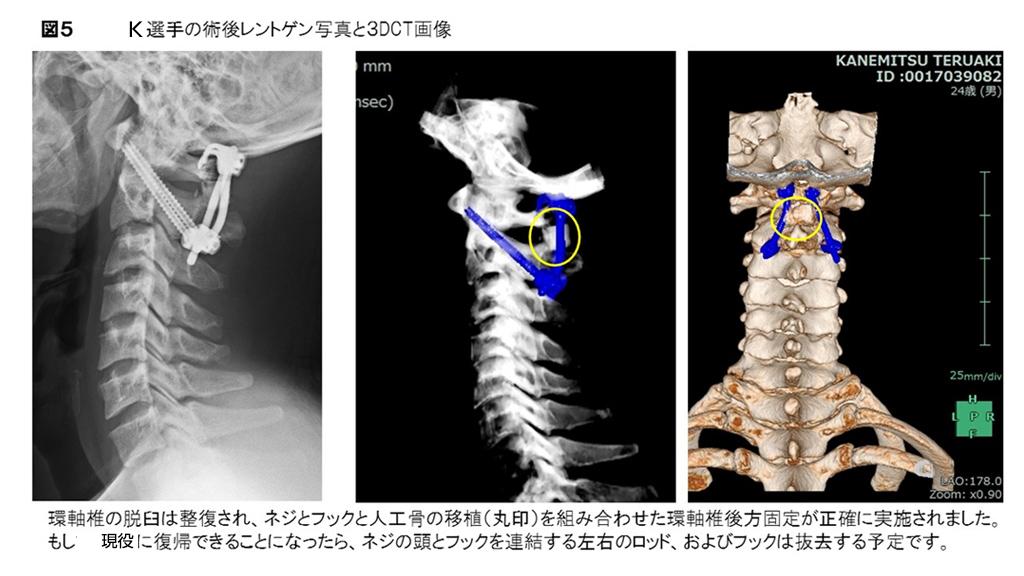 白石脊椎クリニック患者のレントゲン画像02