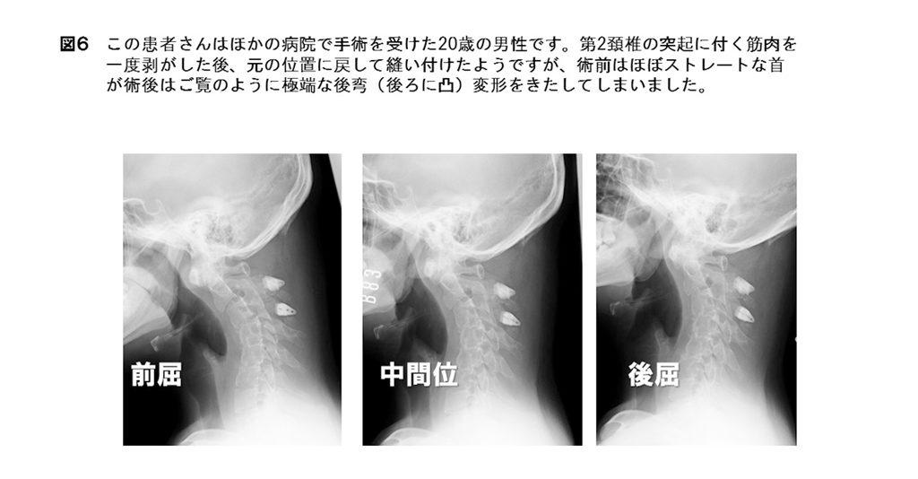 白石脊椎クリニック患者のレントゲン画像03