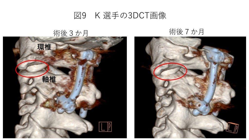 白石脊椎クリニック患者の3DCT画像01
