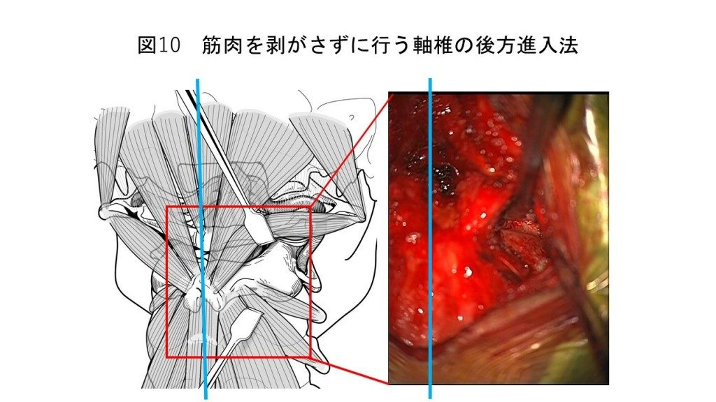 白石脊椎クリニック患者の術式説明画像