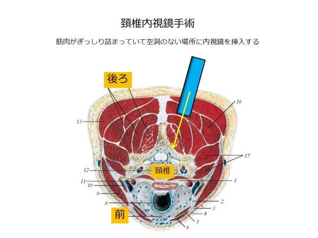 白石脊椎クリニック患者の内視鏡手術画像02