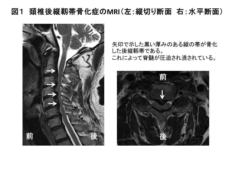 白石脊椎クリニック患者の頚椎後縦靭帯骨化症画像01