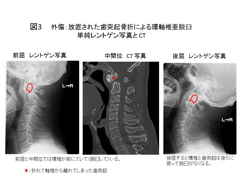白石脊椎クリニック患者の上位頚椎不安定症画像03