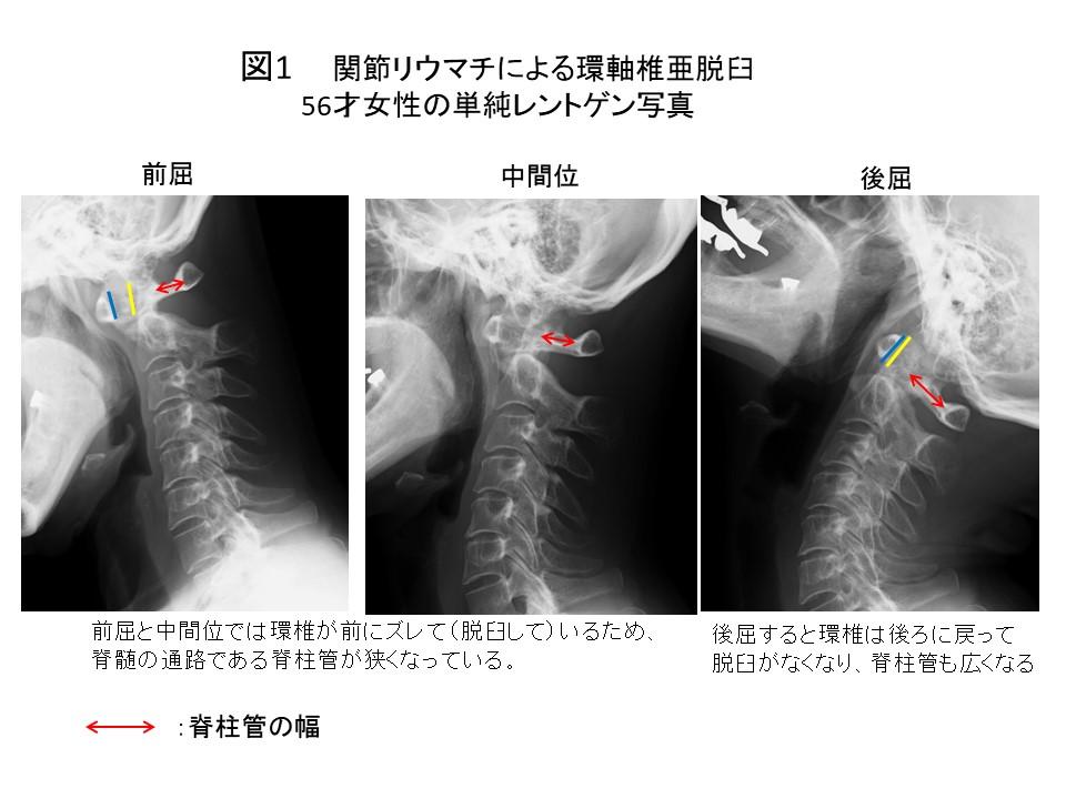 白石脊椎クリニック患者の上位頚椎不安定症画像01