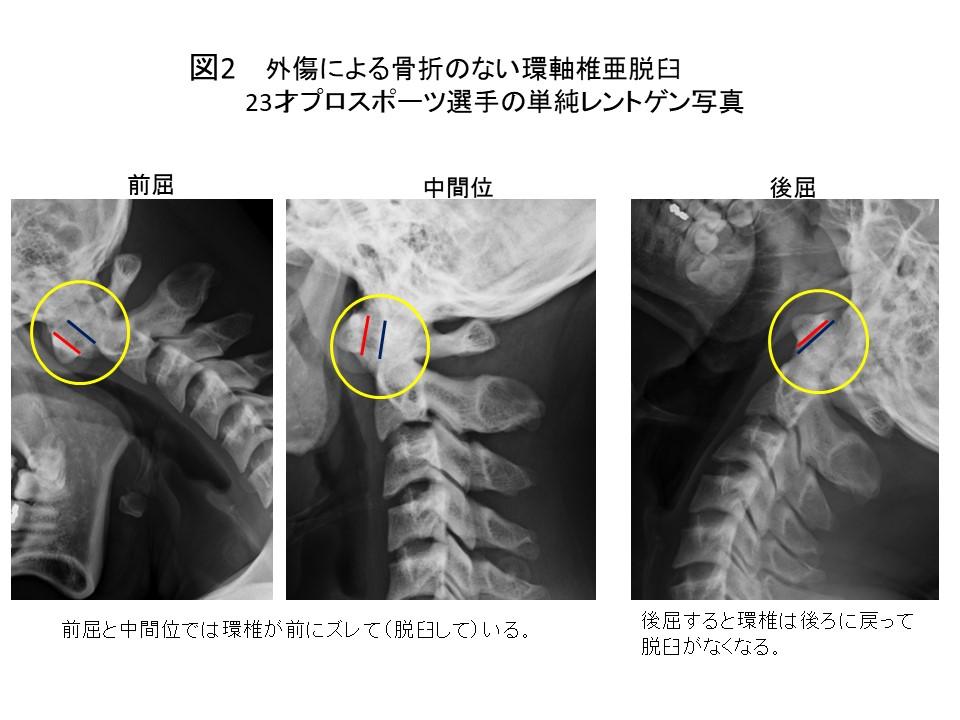 白石脊椎クリニック患者の上位頚椎不安定症画像02
