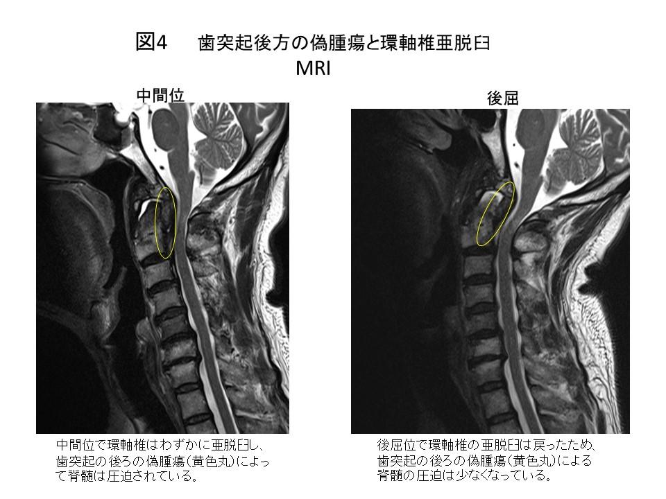 白石脊椎クリニック患者の上位頚椎不安定症画像04