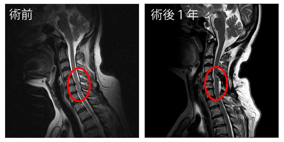 白石脊椎クリニック患者のmri画像