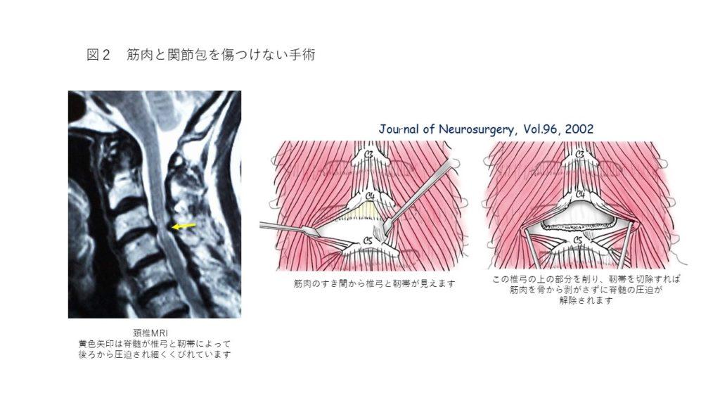 脊髄を圧迫している椎弓と靭帯を出したところ