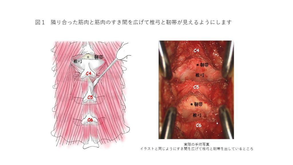 椎弓と靭帯を真ん中から出す方法