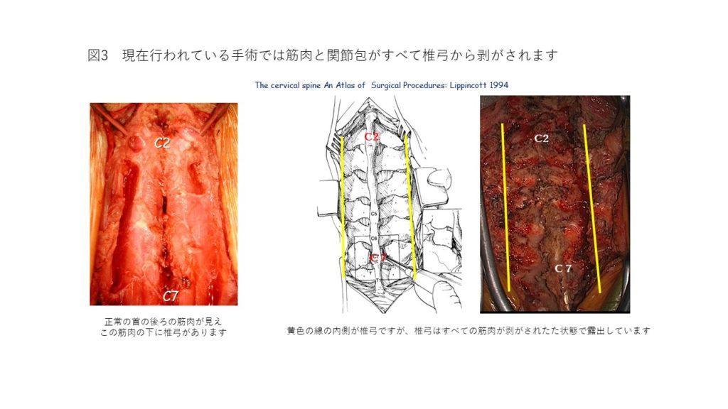 正常な首の後ろの筋肉