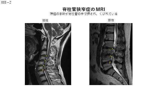 脊椎狭窄症のMRI