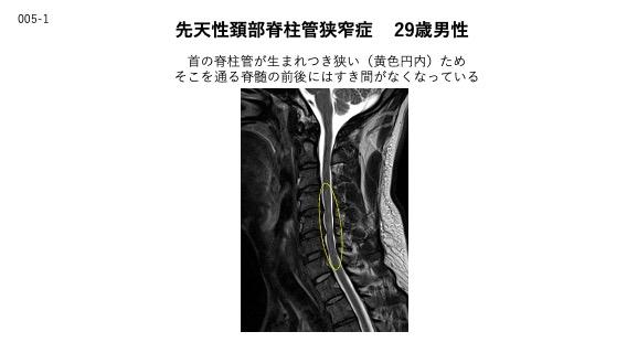 先天性警部脊椎管狭窄症