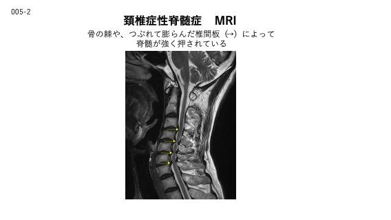頸椎症性脊髄症のMRI画像