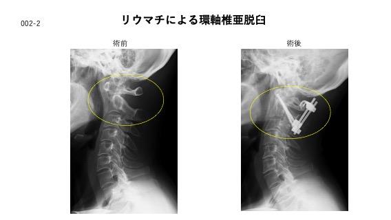 リウマチによる環軸椎亜脱臼