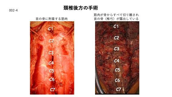 頸椎後方の手術
