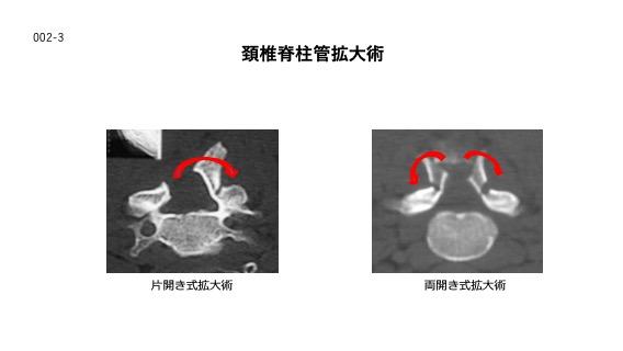 頸椎脊柱管拡大術