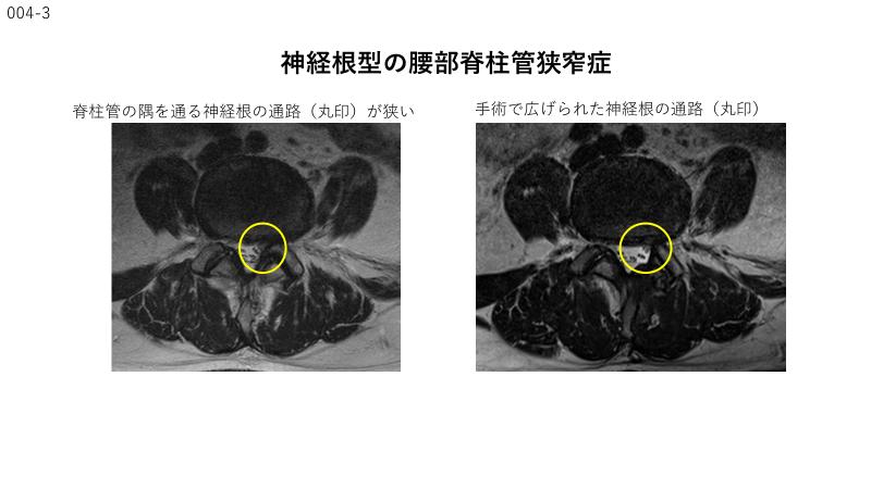 腰部脊柱管狭窄症について